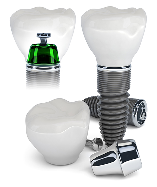 Dental Implants 46176