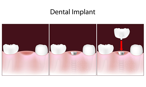 Shelbyville Dental Implants