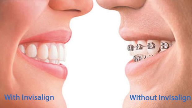 Invisalign in Shelbyville